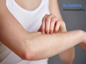 skin treatment homeopathy Doctor