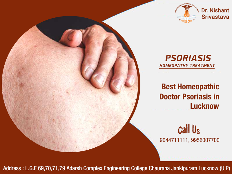 best homeopathic doctor for psoriasis in lucknow